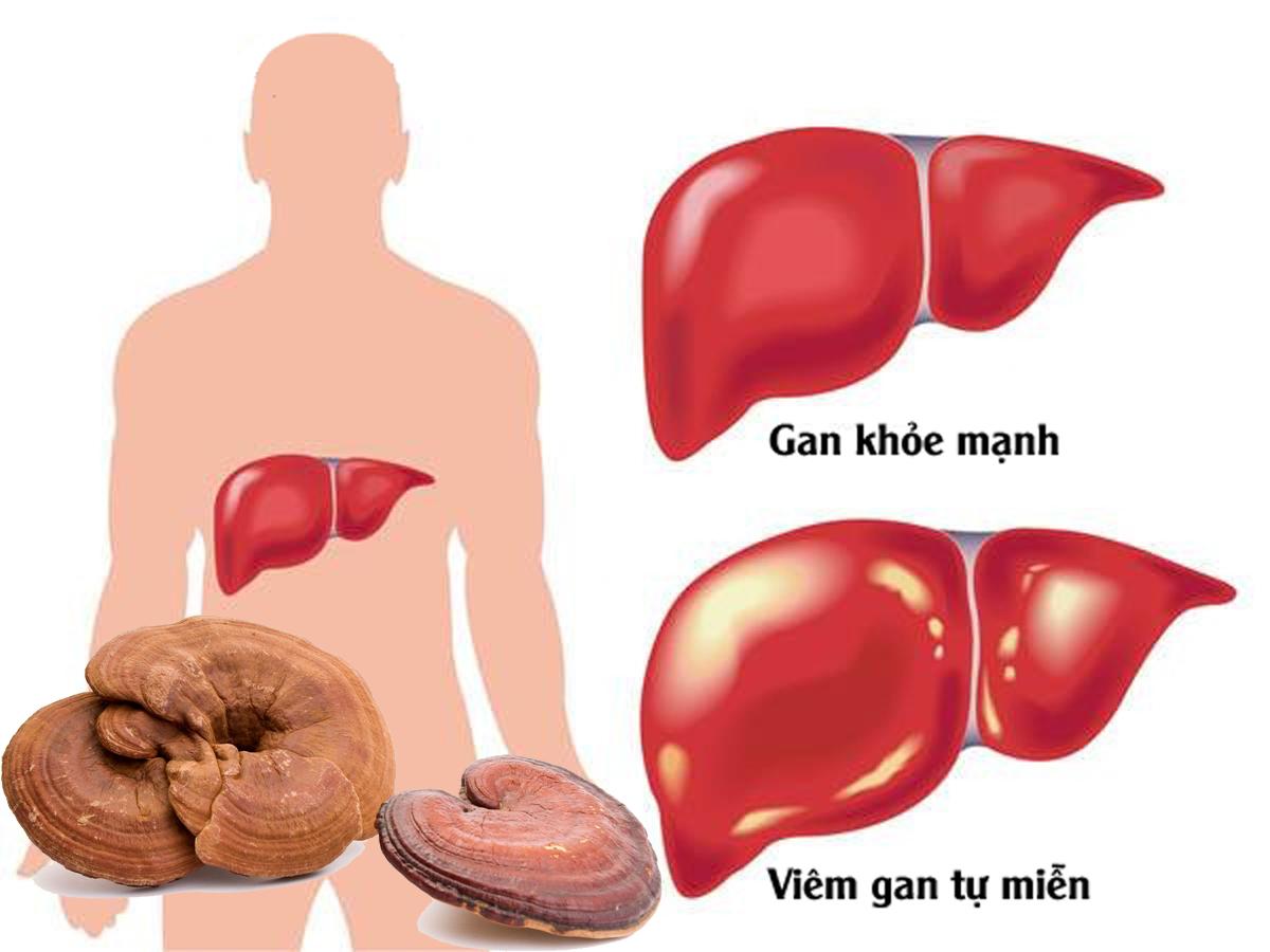 điều trị bệnh gan